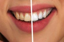 tooth-geralt_pixabay_1200.jpg